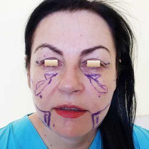 chirurgie-estetica-olimpiu-harceaga-liquid-facelift-caz2(1)
