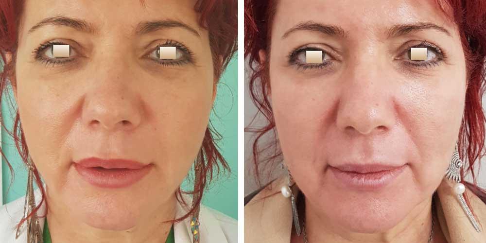 Liquid facelift, Pacient 3