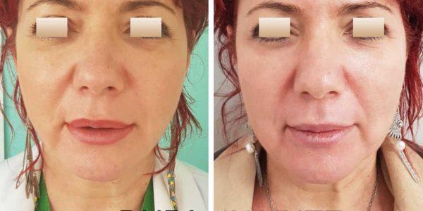chirurgie-estetica-olimpiu-harceaga-liquid-facelift-caz3