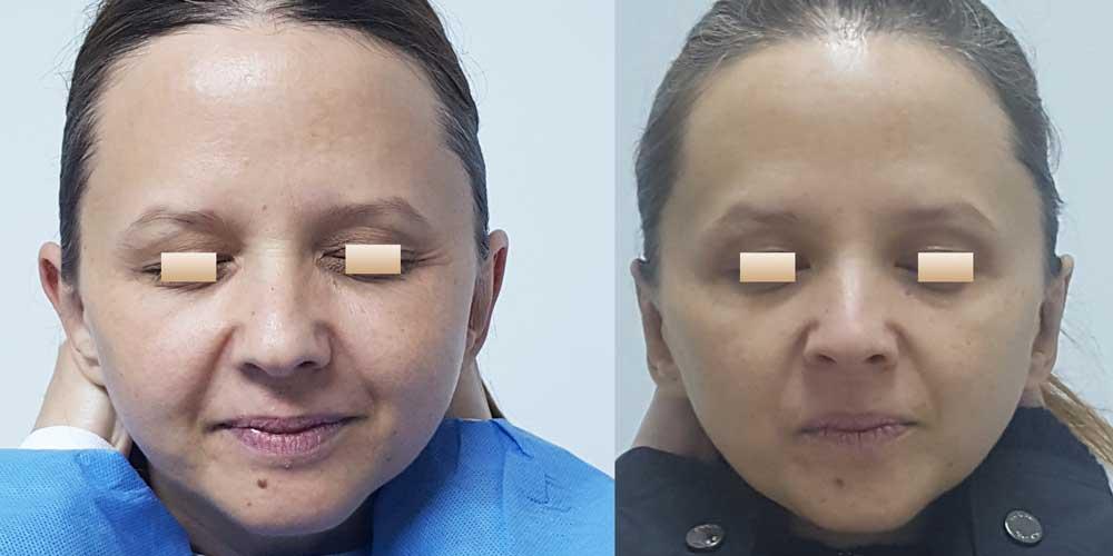 Otoplastie, Pacient 1