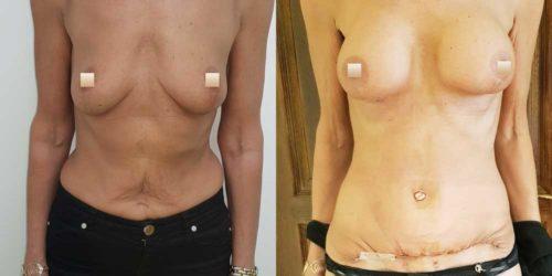 chirurgie-estetica-olimpiu-harceaga-augmentare-mamara-caz-11-1a