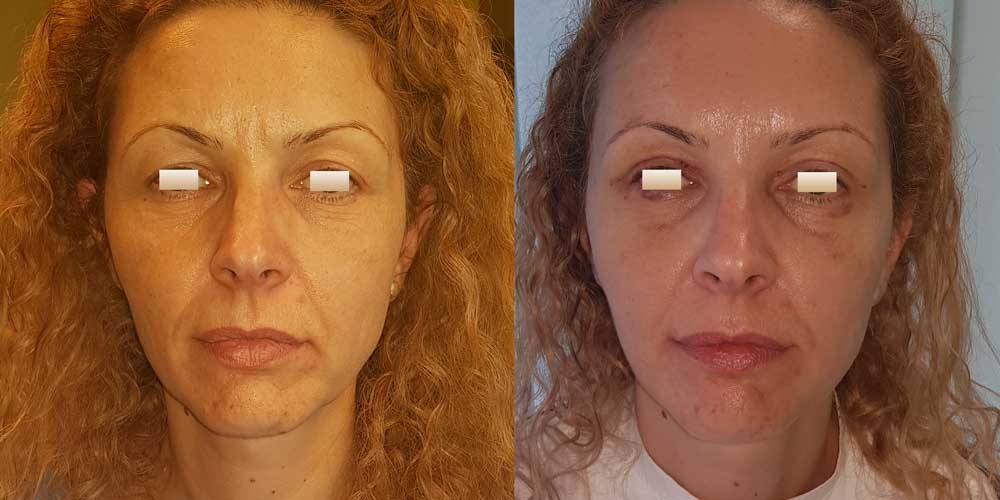 Blefaroplastie, Pacient 9