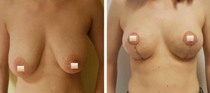 chirurgie-estetica-olimpiu-harceaga-lifting-mamar-caz6-1