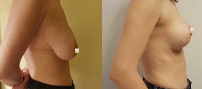 chirurgie-estetica-olimpiu-harceaga-lifting-mamar-caz6-3