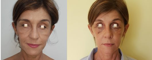 chirurgie-estetica-olimpiu-harceaga-rinoplastie-cluj-caz-15-1