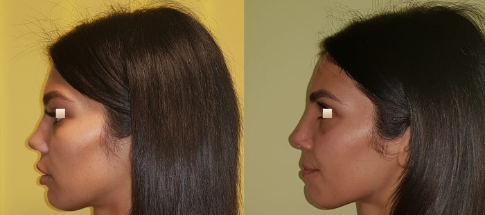 chirurgie-estetica-olimpiu-harceaga-rinoplastie-cluj-caz-16-3
