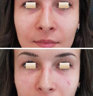 dr-olimpiu-harceaga-acid-hialuronic-fillere-(7)
