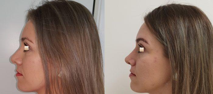 chirurgie-estetica-olimpiu-harceaga-rinoplastie-cluj-caz-18-3