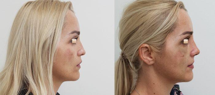 chirurgie-estetica-olimpiu-harceaga-rinoplastie-cluj-caz-19-2