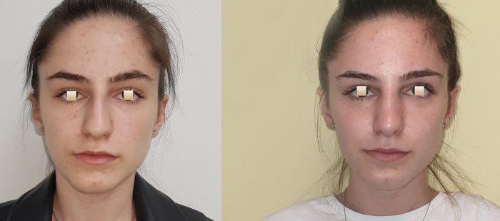 chirurgie-estetica-olimpiu-harceaga-rinoplastie-cluj-caz-20-1-1