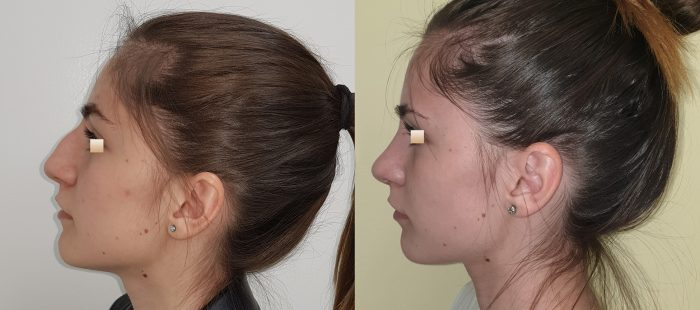 chirurgie-estetica-olimpiu-harceaga-rinoplastie-cluj-caz-20-3