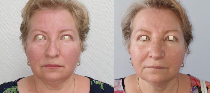 chirurgie-estetica-olimpiu-harceaga-rinoplastie-cluj-caz-22-1