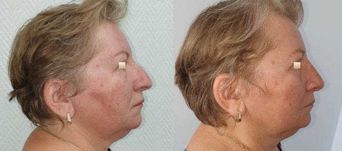 chirurgie-estetica-olimpiu-harceaga-rinoplastie-cluj-caz-22-2