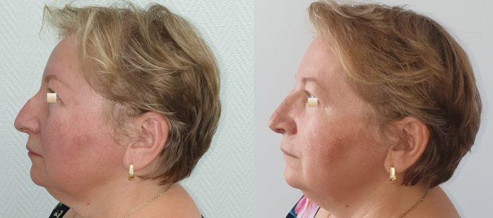 chirurgie-estetica-olimpiu-harceaga-rinoplastie-cluj-caz-22-3