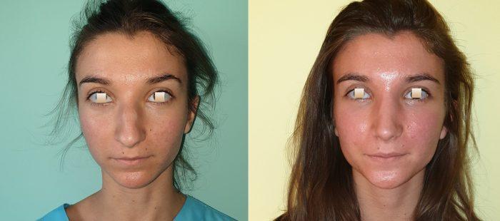 chirurgie-estetica-olimpiu-harceaga-rinoplastie-cluj-caz-23-1