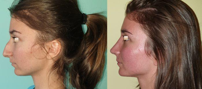 chirurgie-estetica-olimpiu-harceaga-rinoplastie-cluj-caz-23-3