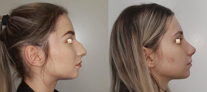 chirurgie-estetica-olimpiu-harceaga-rinoplastie-cluj-caz-24-2
