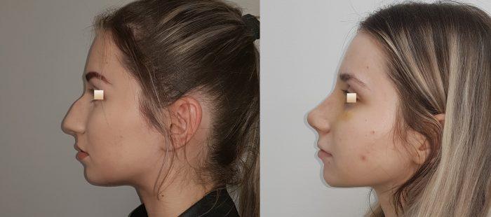 chirurgie-estetica-olimpiu-harceaga-rinoplastie-cluj-caz-24-3